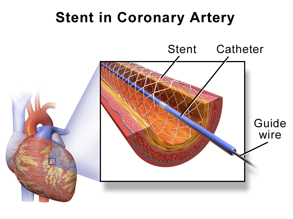 Story of Stents in India